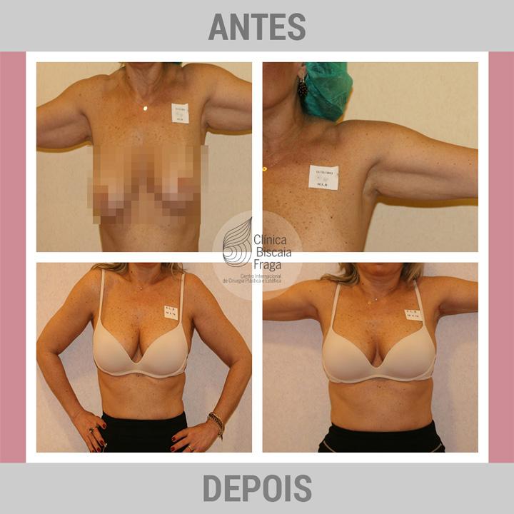 O preço de restauração de um peito depois de operação