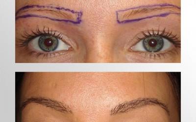 Transplante de sobrancelhas devolve a harmonia do rosto