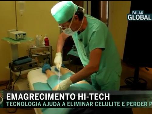 Emagrecimento Hi-Tech – CMTV