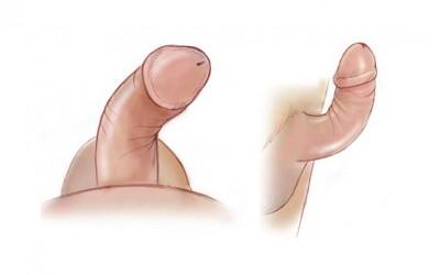 Tratamento inovador para disfunção erétil inclui cirurgia e fisioterapia