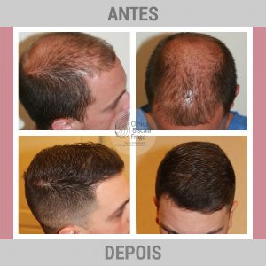 antes-depois_tratamento_capilar2